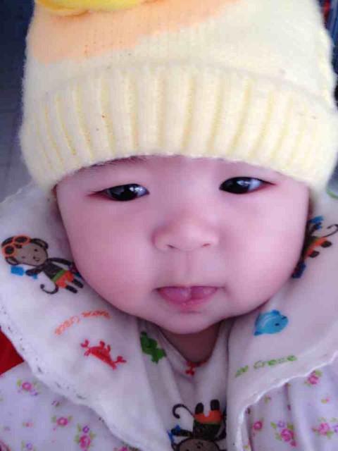 宝宝舌系带过短,明天要做个小手术,好担心