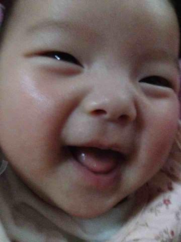 舌系带短 宝妈,你们带孩子体检有说舌系带短的吗