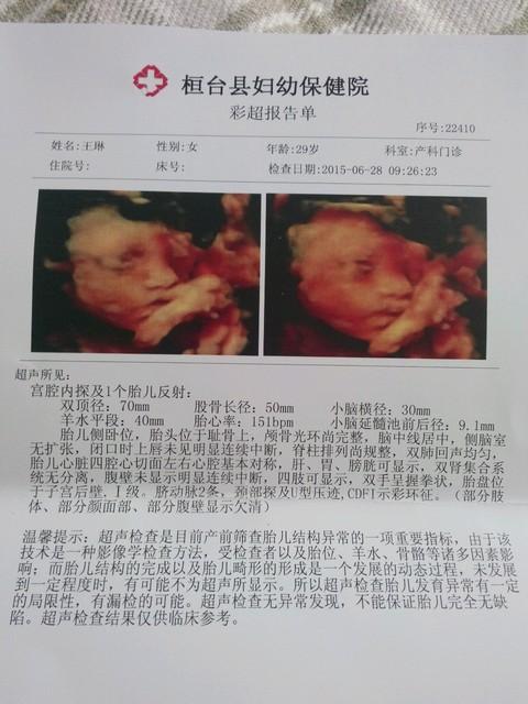 孕27周四维彩超,医生说孩子脑袋大图片