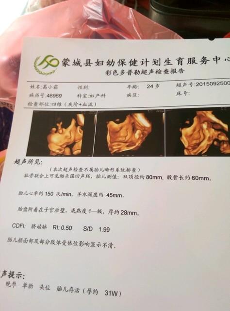 四维彩超 图片能看出来男女吗图片