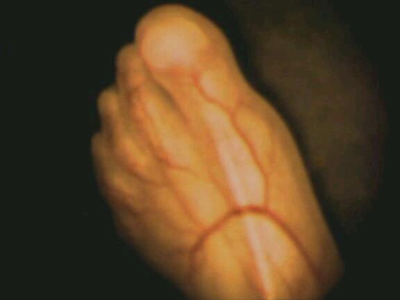 孕期各月胎儿发育清晰图